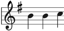 Music playback
